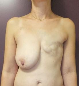 Dorsal +prothèse 1