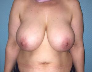 Réduction mammaire 1