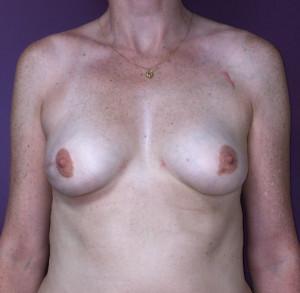 injection de graisse 2