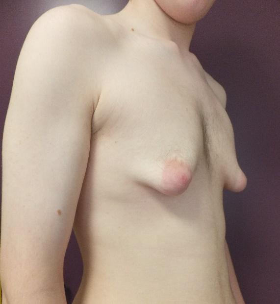 Gynécomastie 5