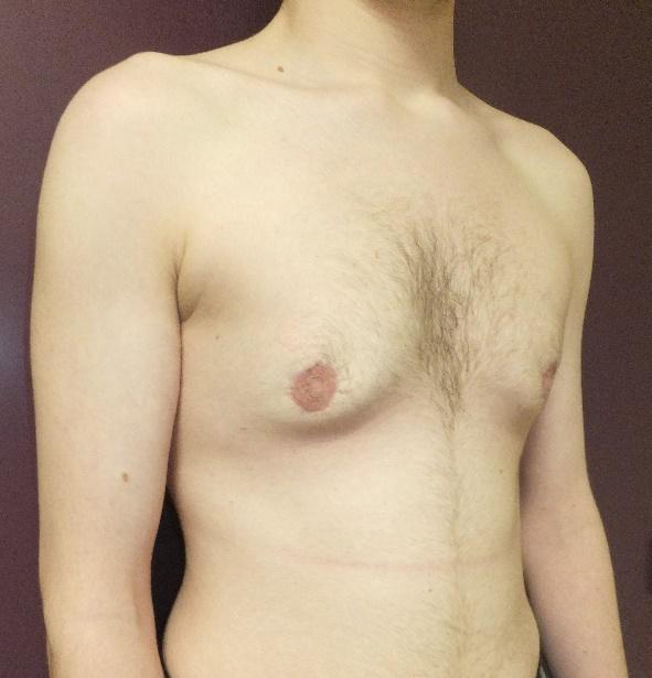 Gynécomastie 6